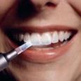 Érosion acide des dents