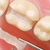 Traitement dentaire restaurateur
